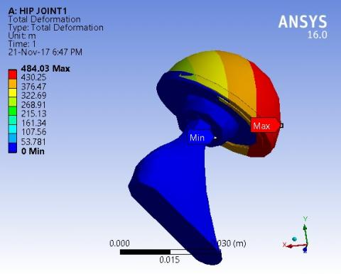 Stress Analysis of Hip and Knee Prostheses Using a Novel